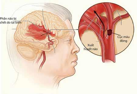 bệnh xuất huyết não