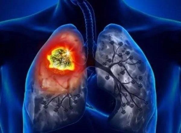 phổi sợ khói thuốc